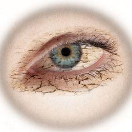 Suche oczy – moje zmagania